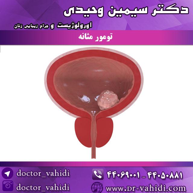 تومور-مثانه