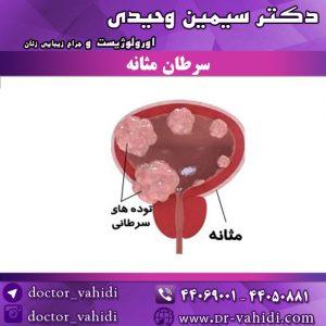 سرطان-مثانه