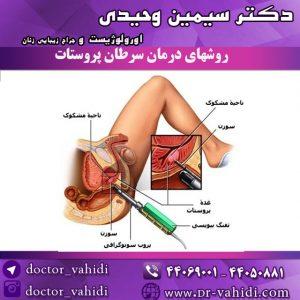 روش-های-درمان-سرطان-پروستات