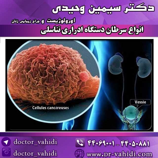 انواع-سرطان-دستگاه-ادراری-تناسلی