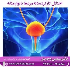 اختلال-کارکرد-مثانه-مرتبط-با-نوار-مثانه