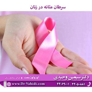 سرطان مثانه در زنان